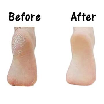 Mondpalast @ Elektrische Hornhautentferner Werkzeug Fußpflege Elektronische Pedicure Pediküre Fuß-Schwielen-Haut-Dead Skin Remover für Fuß Peeling die Grob trockene Haut Schwielen geknackt tote trockene Haut und harte Haut Entfernung für zu Hause und Salon -